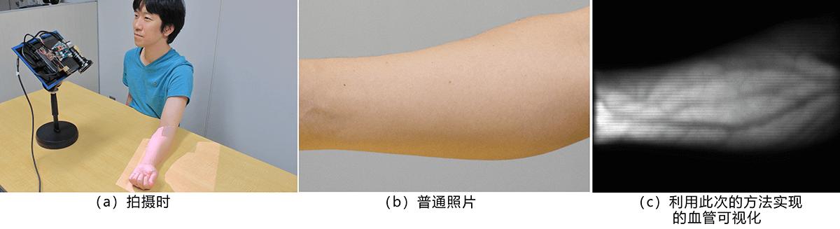 日本开发出非接触实时清晰显示皮下血管的技术,有望应用于注射、采血等医疗用途