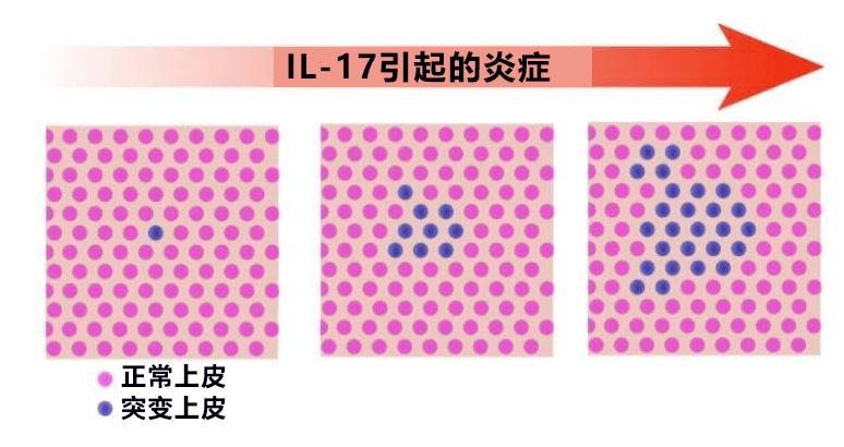 kj克隆_日本发现溃疡性大肠炎特定基因突变,有望查清发病和恶化机制 ...